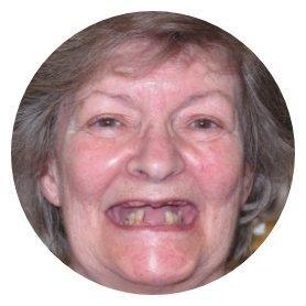 implants dundas ontario