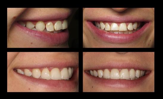 dundas dental implants